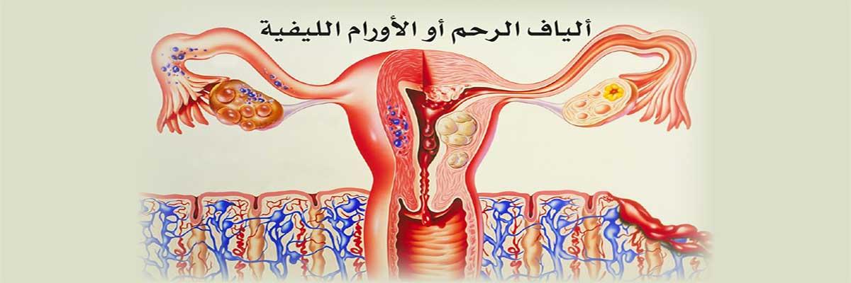 ألياف الرحم أو الأورام الليفية